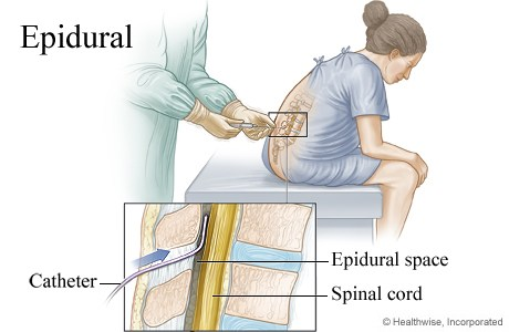epidural-space-catheter